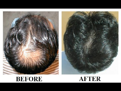 Hair Regrowth For Men Natural Way